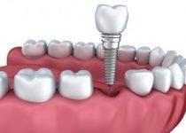 implant dentaire les differentes etapes